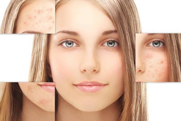 Как убрать или улучшить вид шрамов от угревой сыпи?
