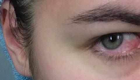 Покрасневшие глаза.