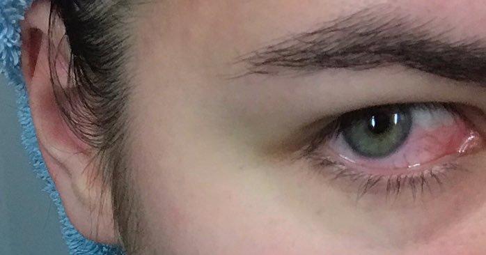 Что делать, если в глаз попал шампунь