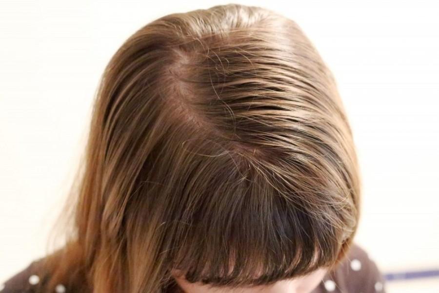 Какие волосы можно считать жирными 1