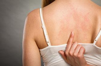 Вызывают ли гели для душа аллергию?