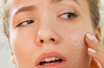 Какой крем выбрать, если шелушится кожа на лице?