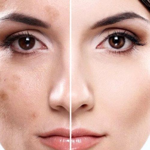 Какой выбрать крем от пигментации на лице?