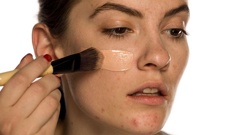 неподготовленная к макияжу кожа
