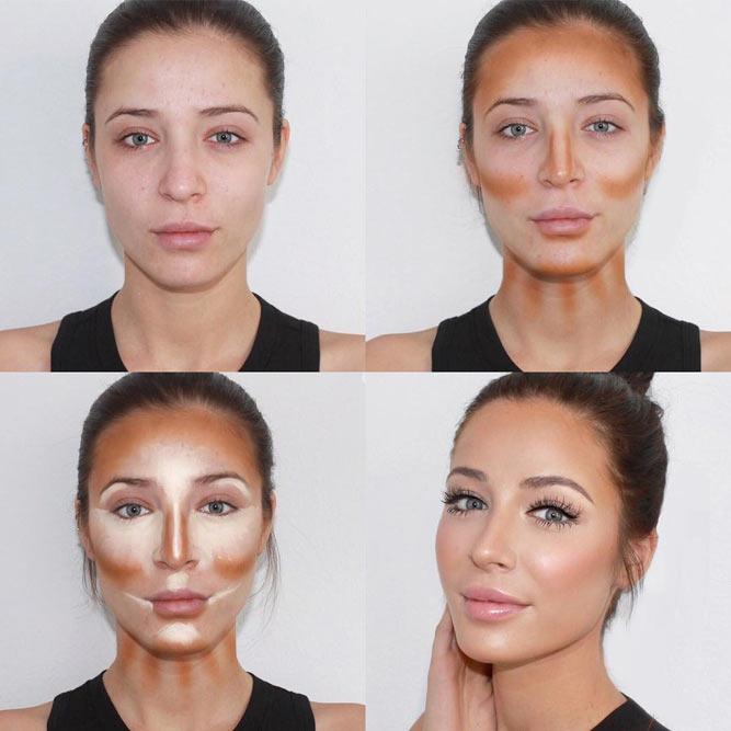 контуринг лица инъекциями фото до и после