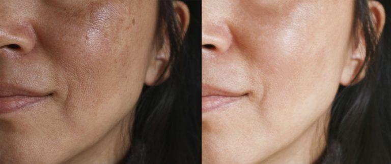 фото до и после пилинга лазерного