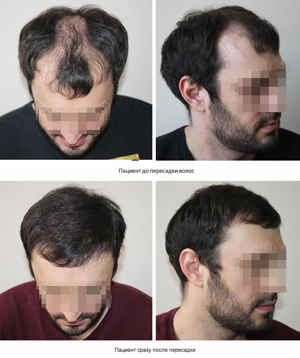 Методы пересадки длинных волос